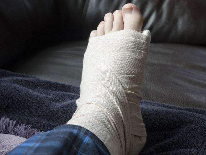 Một người bị gãy ngón chân út nhưng vẫn phải bó bột.