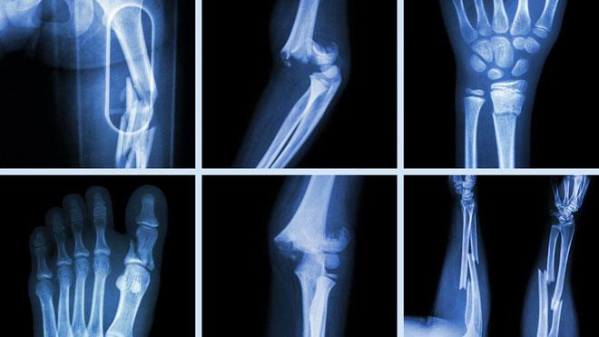 Ảnh chụp X-quang xương bị gãy.