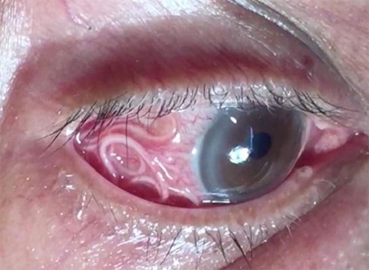 Trước khi bị loại bỏ, con giun chỉ dài tới 15cm vẫn ngoe nguẩy trong mắt bệnh nhân.