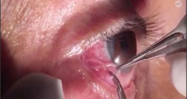 Một con giun chỉ xuất hiện trong lòng trắng mắt của một bệnh nhân tại Ấn Độ