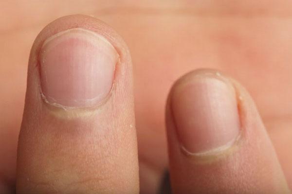 Cắn móng tay khiến răng dễ bị mòn, men răng nhiều vết nứt, khớp cắn bị sai vị trí.