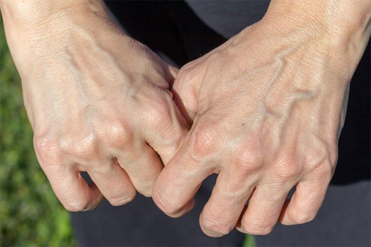 Những làn da mỏng cũng dễ làm tĩnh mạch nổi lên