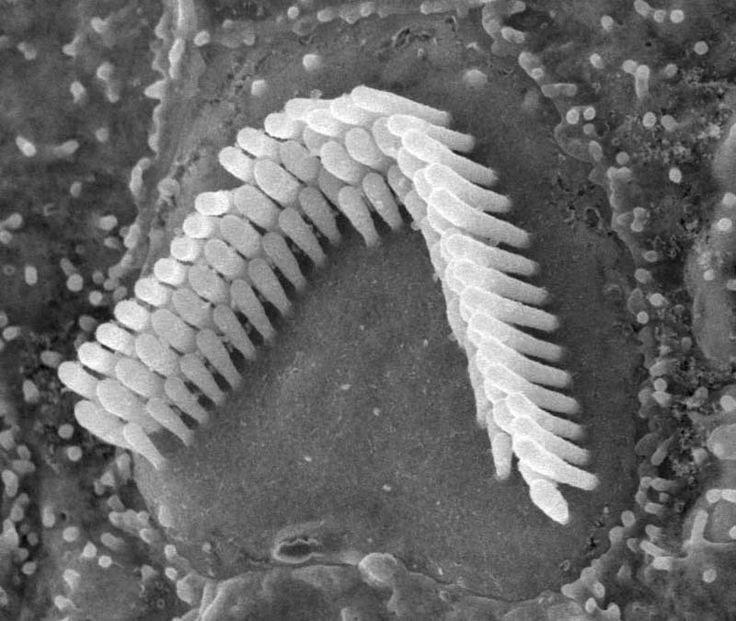 Tế bào nang lông trong tai.