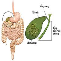 Cảnh báo ung thư đường mật di căn qua gan