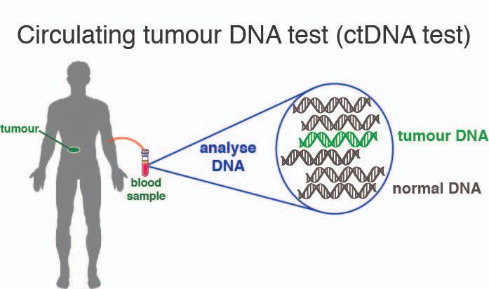 Xét nghiệm máu ctDNA giúp phát hiện nguy cơ tái phát ung thư qua tỉ lệ DNA ung thư trong máu.