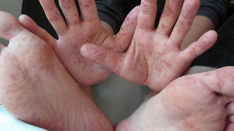 Một bệnh nhân bị bệnh tay chân miệng.