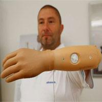 Cánh tay sinh học điều khiển bằng tín hiệu não