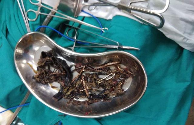 Rất nhiều kim loại gồm các vật sắc nhọn được tìm thấy trong dạ dày một người phụ nữ ở Ấn Độ
