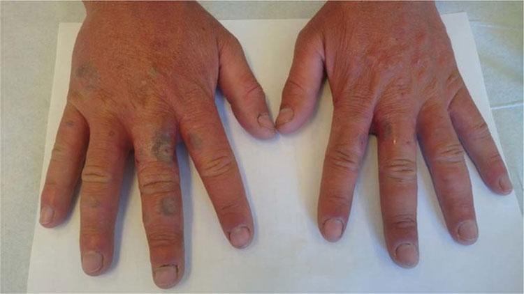 Hai bàn tay nam thanh niên da trắng ửng đỏ, xuất hiện các nốt xanh như vết hoại tử