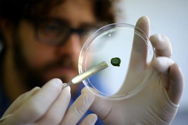 Miếng da quang hợp màu xanh từ vi tảo hứa hẹn giúp vết thương mau lành hơn.