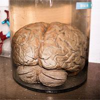 Nuôi được não nhân tạo 6 tháng tuổi, lần đầu tiên phát ra sóng não giống trẻ sơ sinh