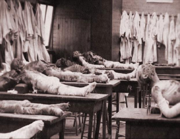 Những xác người dưới tầng hầm giải phẫu của Holmes.