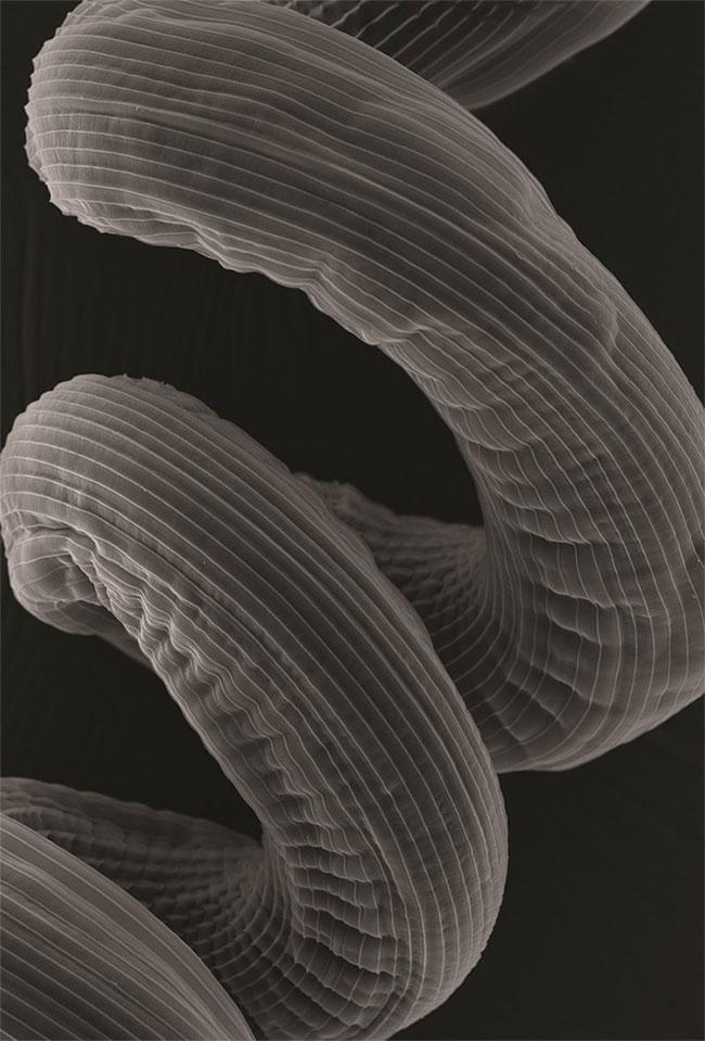 Bức ảnh chụp ký sinh trùng giun sán.
