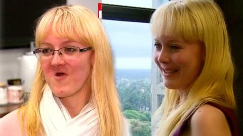 Cô Anelia Myburg rạng ngời sau khi được cấy ghép xương hàm.