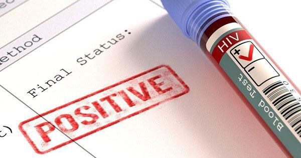 Đến giờ chúng ta vẫn chưa có một cách điều trị nào giúp tiêu diệt hoàn toàn HIV