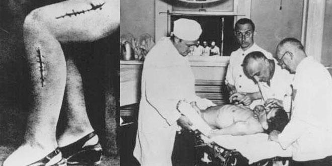 Những vết khâu trên các nạn nhân sau khi bị gỡ bỏ xương.