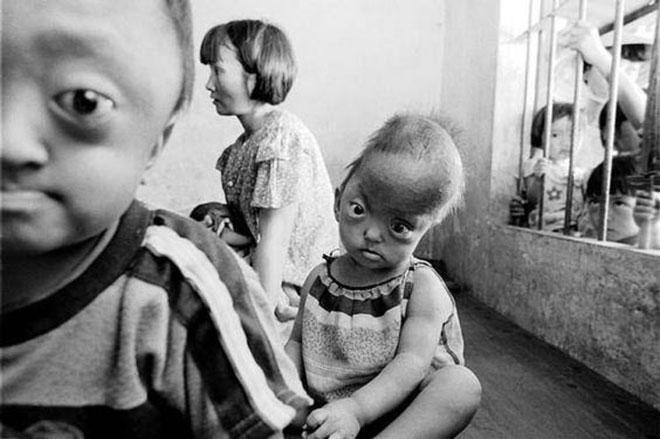 Những đứa trẻ bị dị tật bẩm sinh do ảnh hưởng của chất độc da cam.