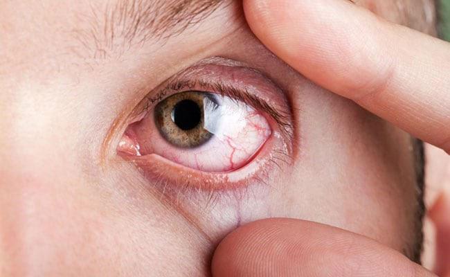 Chớp mắt nhiều để tiết nước mắt cũng giúp mắt đỡ khô tạm thời.