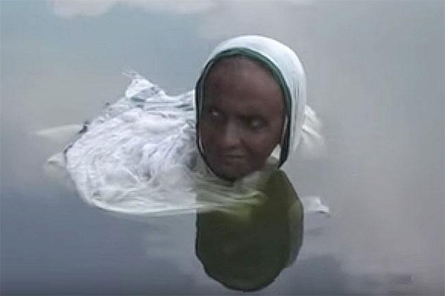 Thói quen ngâm mình dưới nước của bà Pataruni bắt nguồn từ căn bệnh lạ.