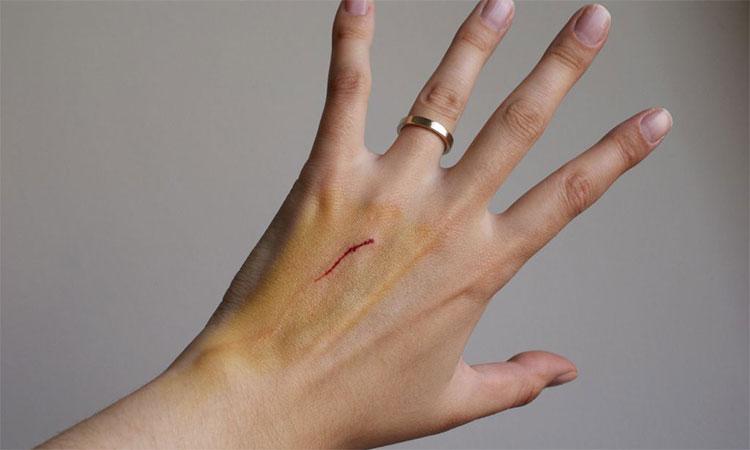 Nếu cơ thể lưu thông không tốt, máu sẽ di chuyển đến chỗ vết thương chậm hơn, trì hoãn quá trình chữa bệnh.