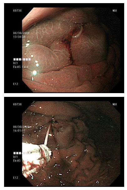 Có ký sinh trùng trong dạ dày.