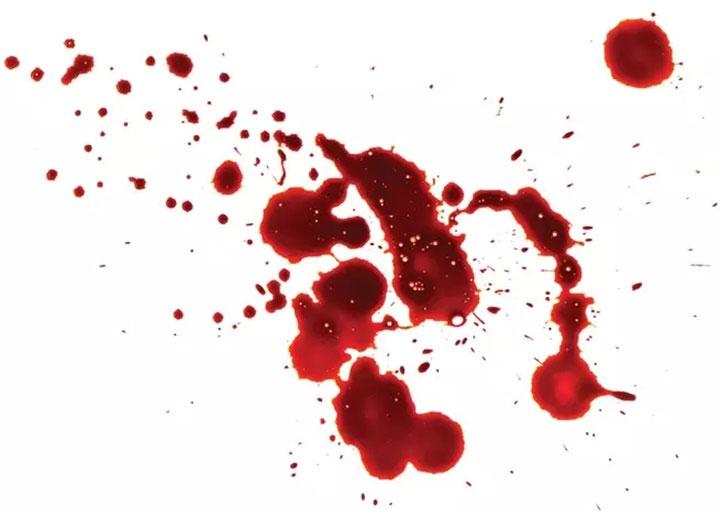Hình ảnh trực quan của chất lỏng nhỏ giọt gây ra sự sụt giảm đáng kể cả về nhịp tim và huyết áp, có thể dẫn tới ngất xỉu.