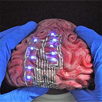 """""""Xăm"""" hình lên... não để điều trị bệnh, bước tiến mới của các nhà khoa học"""