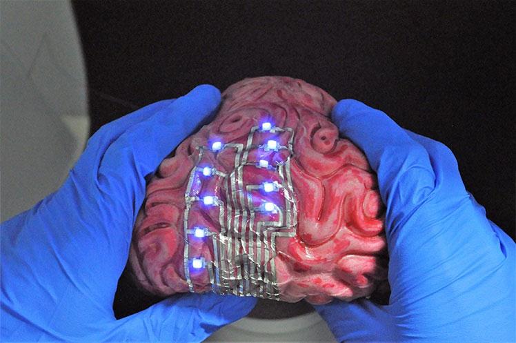 Xăm hình lên... não.