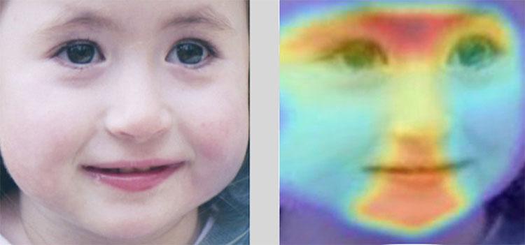 Hệ thống nhận diện khuôn mặt có tên DeepGestalt, giúp chẩn đoán hàng trăm bệnh qua ảnh
