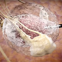 Điều trị ung thư vú không cần cắt bỏ ngực