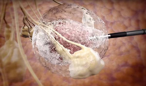 Các bác sĩ sẽ luồn một ống kim loại vào ngực của bệnh nhân để tiêu diệt khối u bằng cách đóng băng nó.