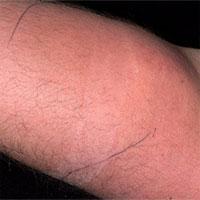Lần đầu tiên trong lịch sử: Người đàn ông tự tiêm tinh trùng vào tay mình, ngay lập tức nhập viện