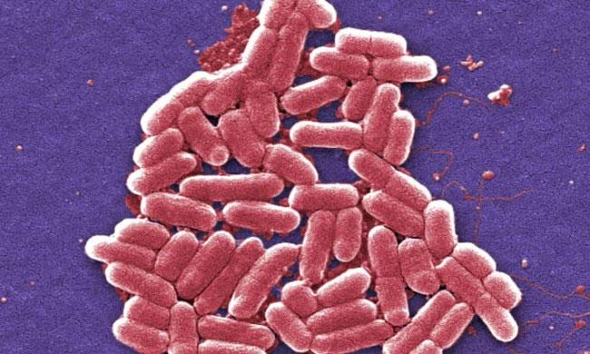 Vi khuẩn về cơ bản là cơn ác mộng với loài người