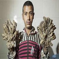 """""""Người cây"""" Bangladesh tái nhập viện vì bệnh nặng hơn"""