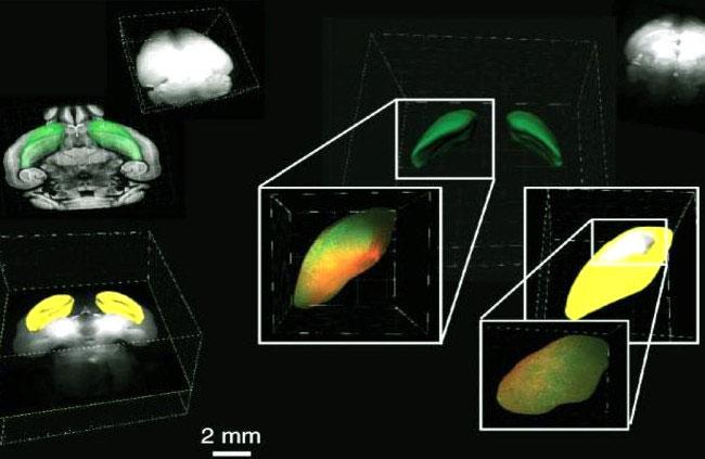 Ảnh 3D của não chuột sau khi sử dụng kỹ thuật làm trong suốt để có thể quan sát được các diễn tiến cực kỳ phức tạp mà trong đó