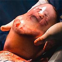 Em bé bĩu môi khi sinh ra trong bọc ối còn nguyên vẹn