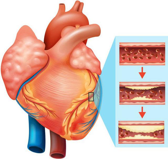 Thực phẩm chiên rán ảnh hưởng không tốt tới sức khỏe tim mạch.