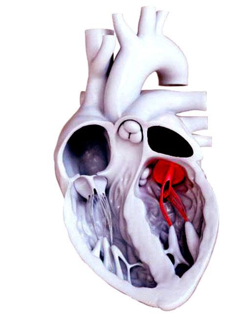 Mô hình cho thấy van hai lá (màu đỏ) nằm ngay trung tâm của tim.