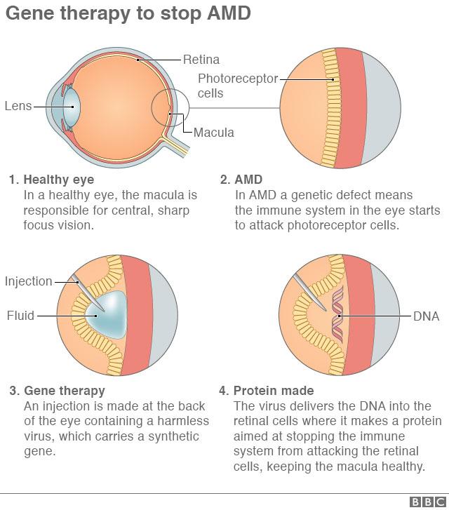 Bác sĩ tiêm vào võng mạc của bệnh nhân một loại virus vô hại mang trong mình một đoạn gene tổng hợp.