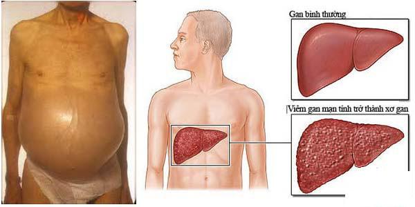 Bệnh xơ gan thường gặp ở những người uống nhiều rượu bia