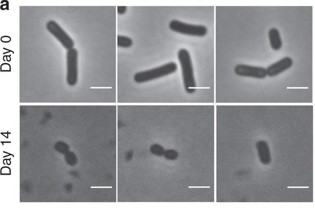 """Những con vi khuẩn Bacillus hình que, nhưng khi biến thành """"zombie"""" chúng rút lại gần với hình cầu"""