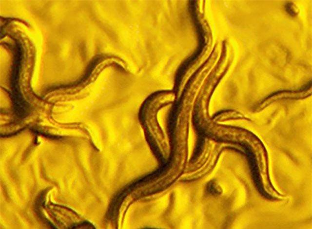 Các nhà khoa học vừa phát hiện ra một loài vi khuẩn mới có khả năng tiêu diệt các loài giun ký sinh.