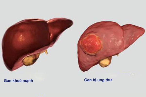 Hình ảnh so sánh giữa lá gan khoẻ mạnh và gan bị ung thư.