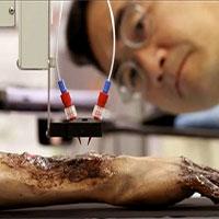 Máy in 3D sinh học in da trực tiếp lên vết thương