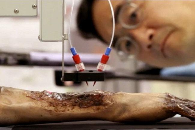 Hệ thống này kết hợp công nghệ in sinh học có khả năng lắng tụ nhanh chóng các vật liệu và tế bào với độ chính xác cao