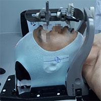 Bệnh nhân ung thư chỉ cần 6 lần xạ trị nhờ kỹ thuật mới