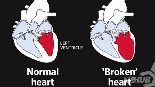 """Ảnh minh họa của tim thường (bên trái) và tim """"tan vỡ""""."""
