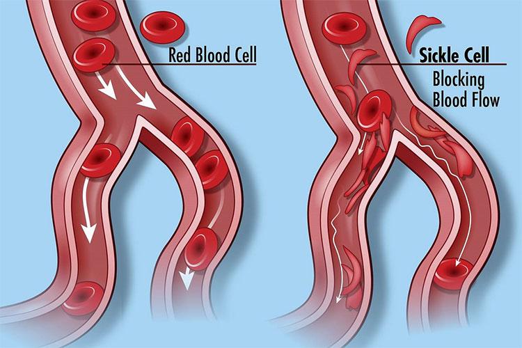 Hồng cầu khó di chuyển trong các vi mạch nhỏ, dễ bị đóng vón gây tắc nghẽn.