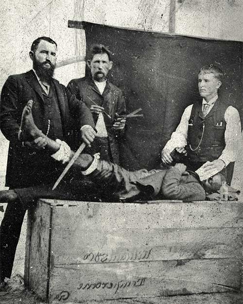 Phẫu thuật trên người có gây tê năm 1855.