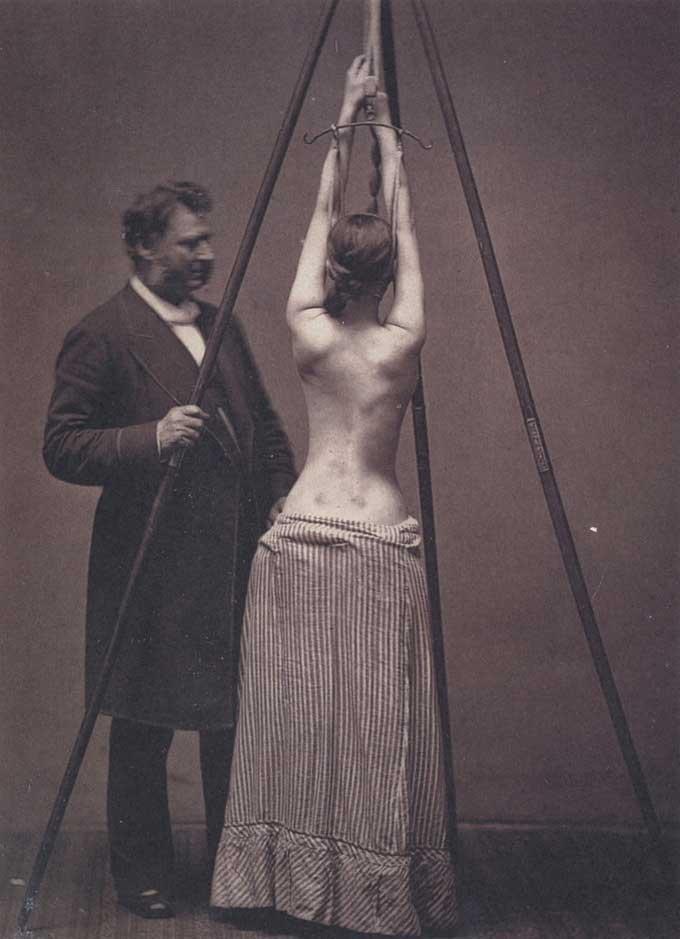 Phương pháp chữa vẹo cột sống của tiến sĩ Lewis Sayre.